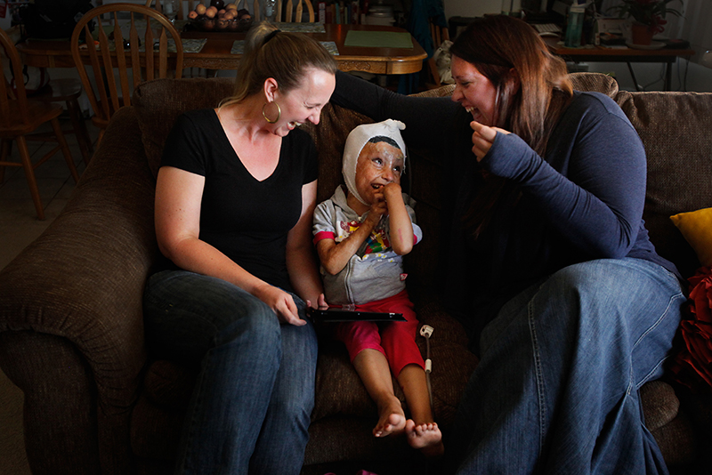 "From ""A Healing Bond,"" two sisters opened their home and hearts, agreeing to care for Arefa, an Afghan child who was sent to Los Angeles for medical care after being severely burned. The experience changed all three lives. Photograph by Barbara Davidson, Los Angeles Times"