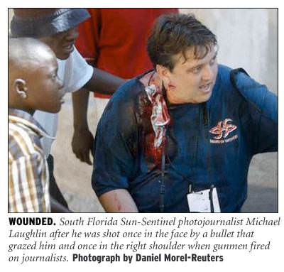 [Wounded: South Florida Sun-Sentinel photojournalist Michael Laughlin after he was shot once in the face by a bullet that grazed him, and once in the shoulder when gunmen fired on journalists. Photograph by Daniel Morel/Reuters]